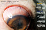Eye ulcer, distichia, ectopic cilia, young shih tzu, tarsorrhapy, toapayohvets singapore