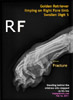 golden-retriever-stepped-upon-fracture-digit-5-right-fore-x-ray-toapayohvets-singapore.jpg