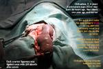 http://www.kongyuensing.com/cgi/20120230tn_chihuahua-6years-ultrasound-2fetuses-dead-caesarean-no-pups-toapayohvets-singapore.jpg